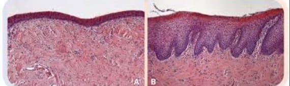 Coupe histologique de la muqueuse vaginale, avant (A) et 1 mois après (B) traitement par laser CO2, on note l'épaississement notable de la muqueuse en post-traitement.